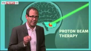Ashya King: Proton Beam Therapy Explained