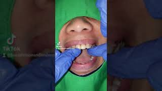 well fitted denture