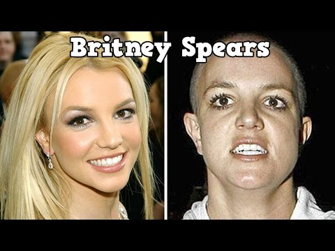 20 Shocking Photos of Celebs Before and After Drugs
