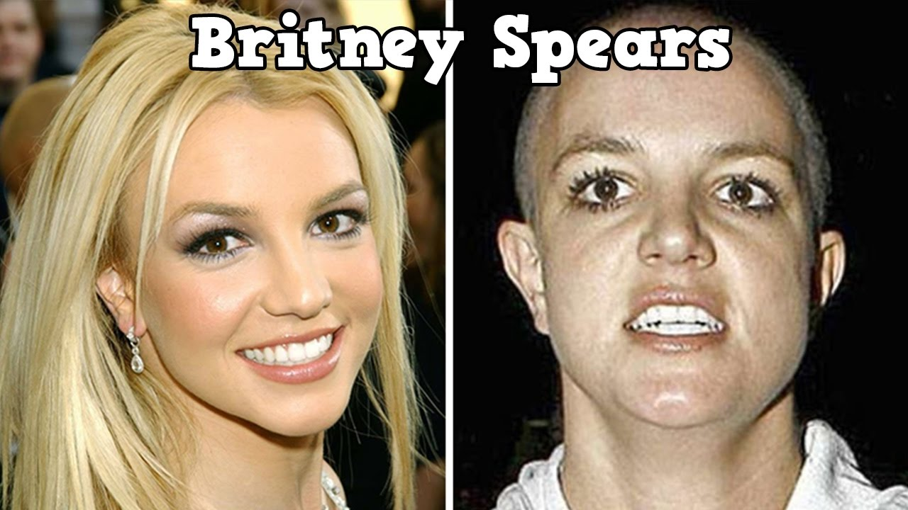 Celebs Before and After Drugs | Drug use | Pinterest ...