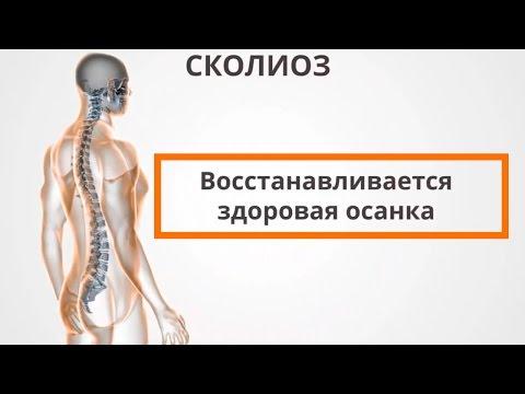 Поясничный остеохондроз: симптомы и лечение, причины