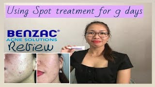 Benzac Benzoyl Peroxide  5% Review   Using spot treatment in 9 Days