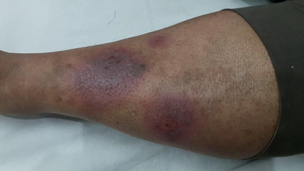 Erythema nodosum bolest kloubů