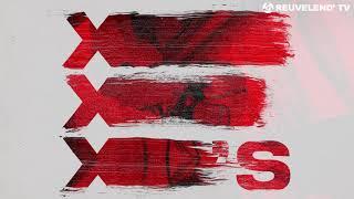 CMC &amp GRX feat. Icona Pop - X&#39s (Jay Hardway Remix)