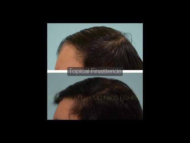 Dallas Topical Finasteride Audio Testimonial with Before and After