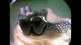 denti belli telescopica