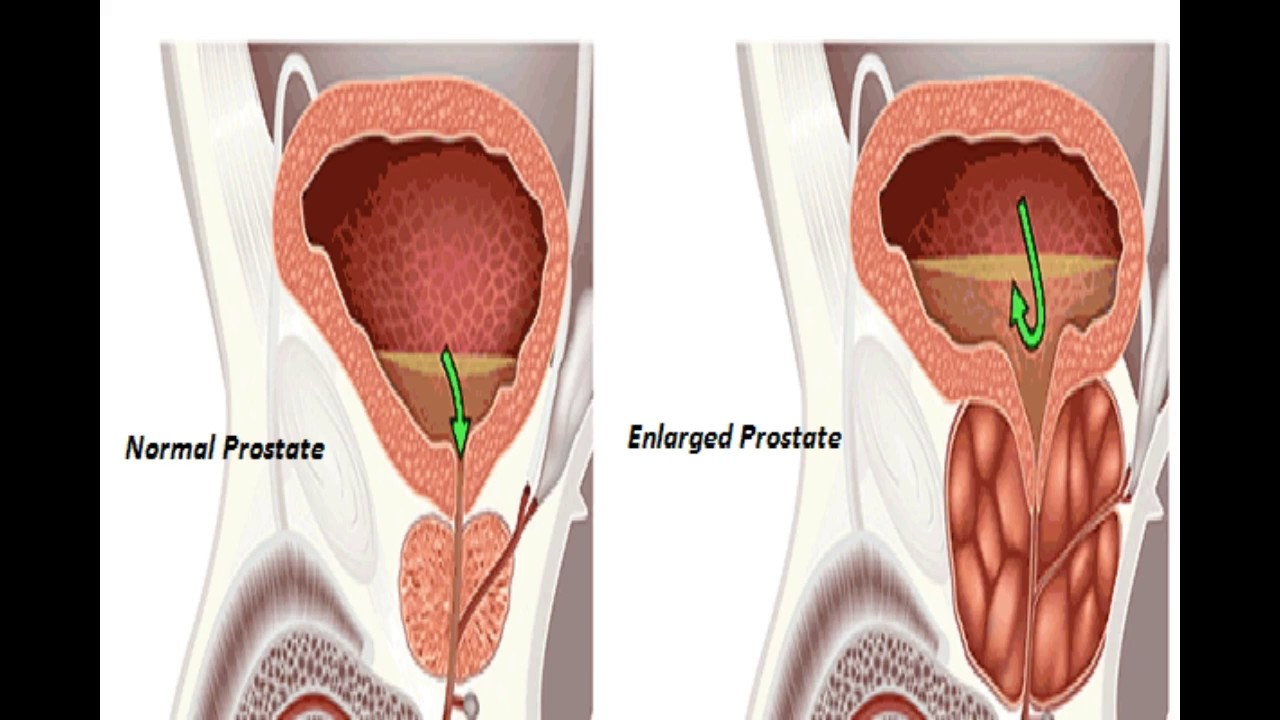 medium resolution of 9 natural cures for enlarged prostate to shrink it with no pain