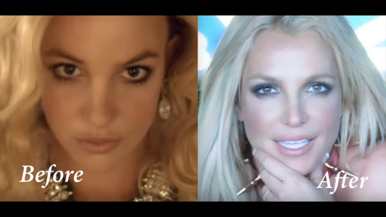 Britney Spears, when SURGERY Goes WRONG ! Circus/Slumber ...