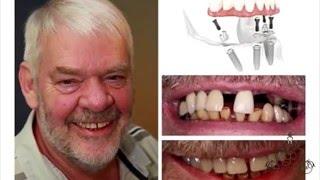 нет зубов - адентия: протезирование all in 4 implants ФАБЕРЖЕ