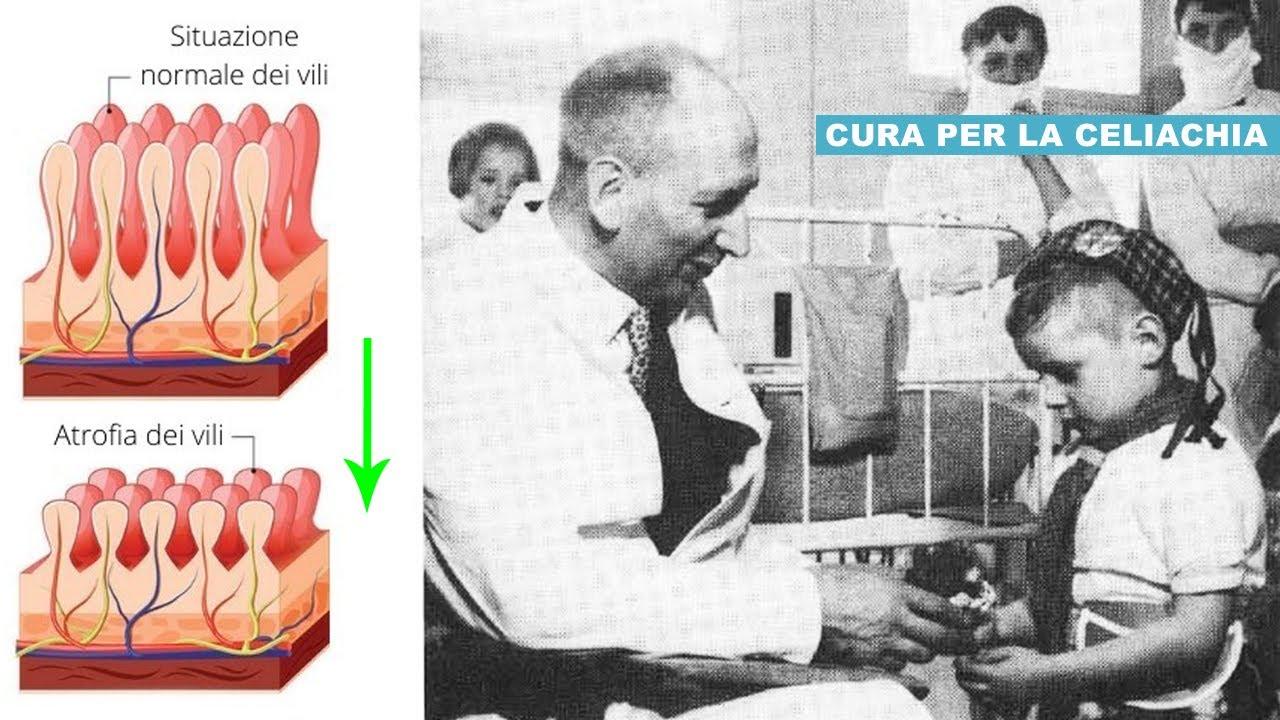 La cura per la CELIACHIA fu scoperta nei Paesi Bassi durante l'occupazione Tedesca