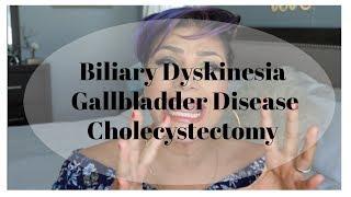 Biliary Dyskinesia | Gallbadder Dyskinesia | Cholecystectomy | Gallbladder Surgery
