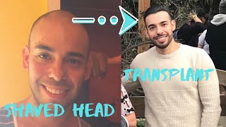 👨🏼🦲Try Shaving Your Head Before Getting A Hair Transplant