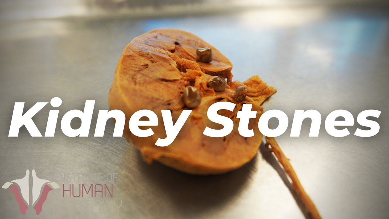 The Most PAINFUL Thing a Human Can Experience?? | Kidney Stones