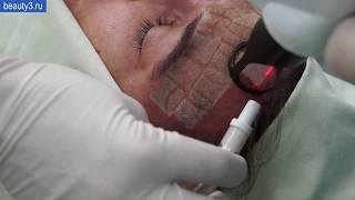 Лазерная шлифовка кожи лица под общим наркозом + плазмотерапия
