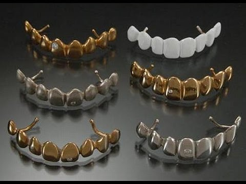 золотые зубы фото