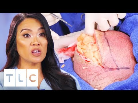 Dr. Lee Removes The Messiest Lipoma Ever! | Dr. Pimple Popper