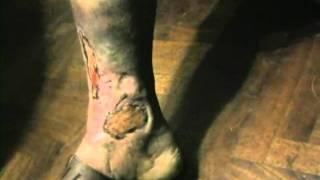 pie diabetico celulitis gangrena uta cura remedio casero uriel tapia 32
