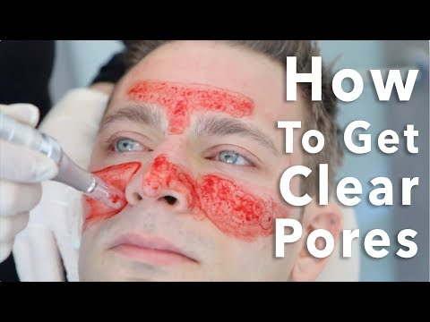 Get Clear Pores With EndyMed Intensif and Microneedling