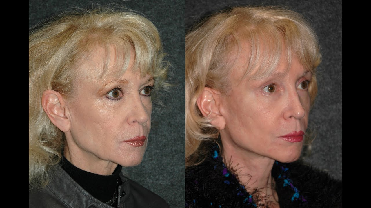 Natural face lift and eye lift on 65 year old woman dr What to buy a 30 year old woman