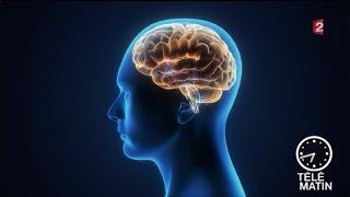 Santé - La douleur articulaire : dans le genou ou dans le cerveau ?