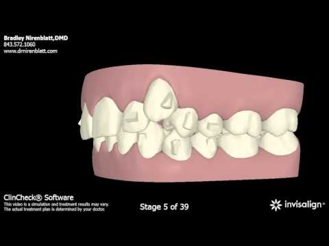 Invisalign Patients Before and After: Nirenblatt Orthodontics