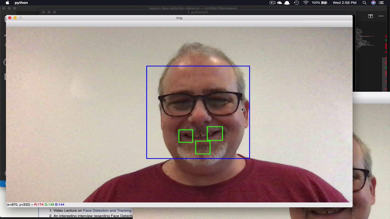 Real-time remote photoplethysmography using a webcam and