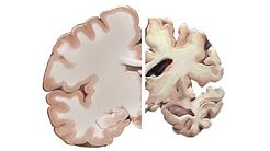 Alzheimer's and the Brain