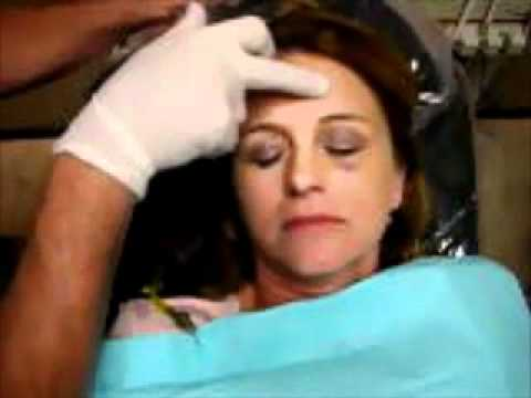 Using manual palpation to find the epicenter of the headache pain and its initiator