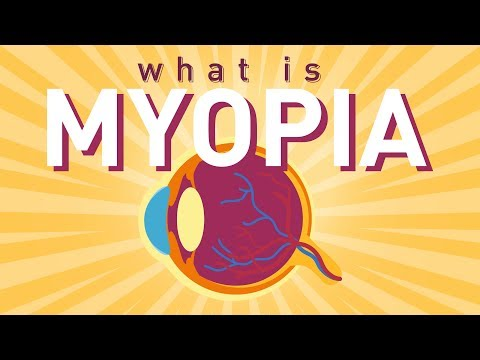 What is Myopia (Short sightedness)?
