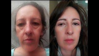 Estiramiento facial la reducir la cirugía hinchazón después Cómo de de