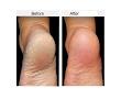 குதிகால் வெடிப்பை ஒரே வாரத்தில் நீக்க Cure Cracked Heels in One Week Tamil