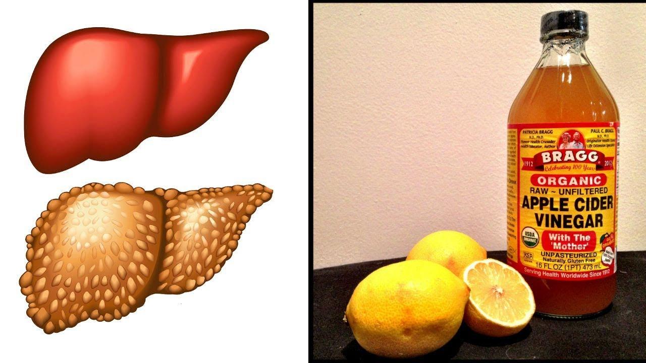Manzana chia limon y vinagre de