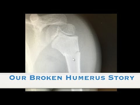 Our Broken Humerus Story