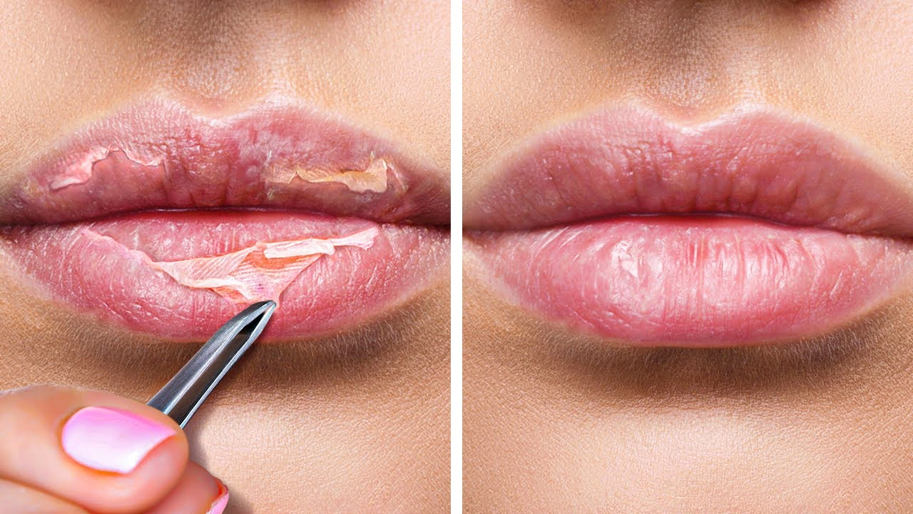 10 TRICKS FOR THE PERFECT LIPS