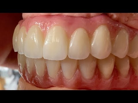 process-of-fabricating-full-mouth-implant-restorations