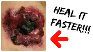 How To Use Lemon Juice On Cuts/Wounds for FASTER Healing!!!