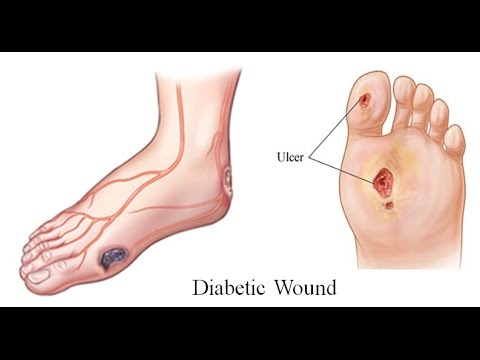 Why wounds heals more slowly in people with diabetes?