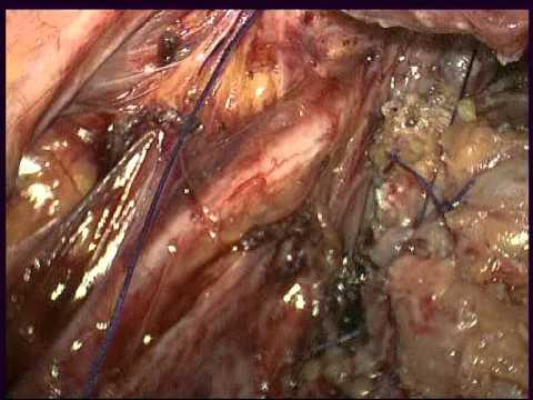 Дисковидная резекция прямой кишки при эндометриозе