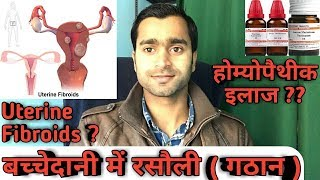 How to remove uterine fibroids by homeopathic medicine