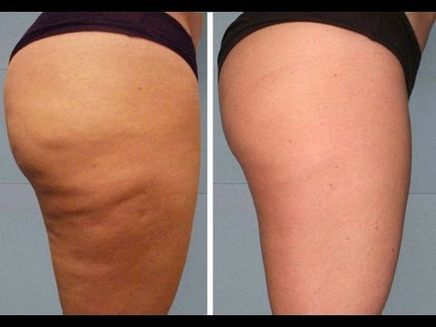 Резултат слика за Eliminate Cellulite