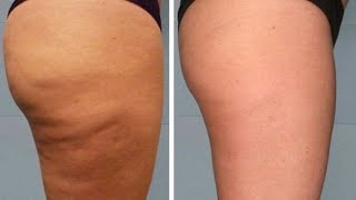 How to Get Rid of Cellulite (Expert REVEALS 5 Keys on Getting Rid of Cellulite)
