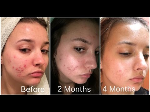 Retin A Before After Acne | www.pixshark.com - Images