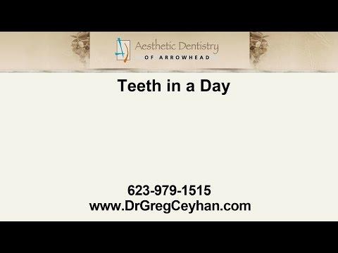 Teeth in a Day Implants | Aesthetic Dentistry of Arrowhead