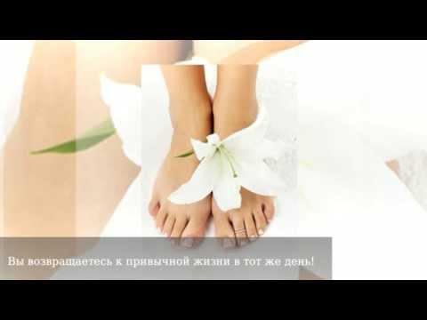 Отеки ног, причины и лечение, что делать если отекают ноги