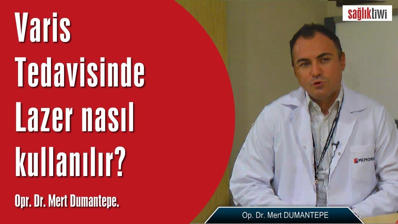 Varis Tedavisinde Lazer nasıl kullanılır?  SaglikTiwi  Opr. Dr. Mert Dumantepe
