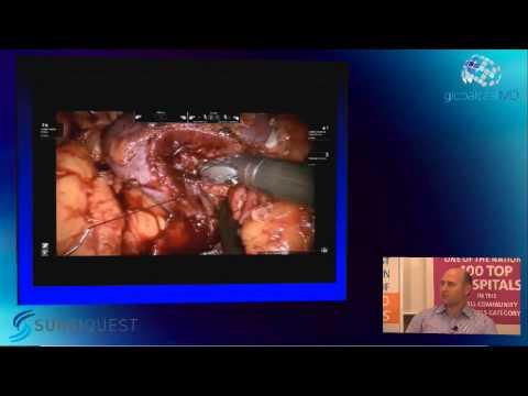 05 Robotic Partial Nephrectomy Complex Renal Masses James Porter HD