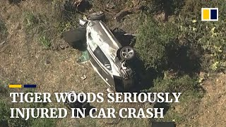 Golf legend Tiger Woods suffers severe leg injuries after rollover car crash in California