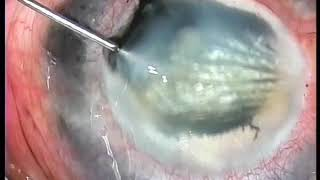 Pocket technique of corneal tattoo