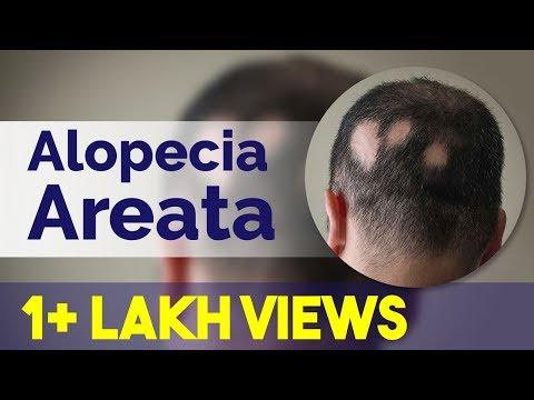 Patchy hair loss/Alopecia Areata | Alopecia Totalis- Causes, Symptoms & Treatment