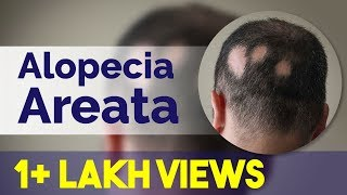 Patchy hair loss/Alopecia Areata | Alopecia Totalis- Causes, Symptoms & Treatment